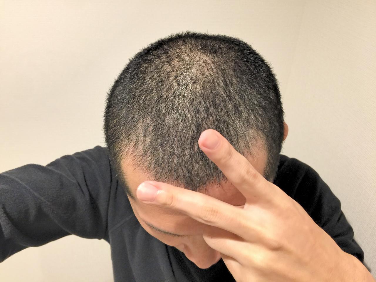 縮毛剛毛を簡単に坊主にフィリップスのバリカン[HC7460]でセルフ丸刈りも簡単!