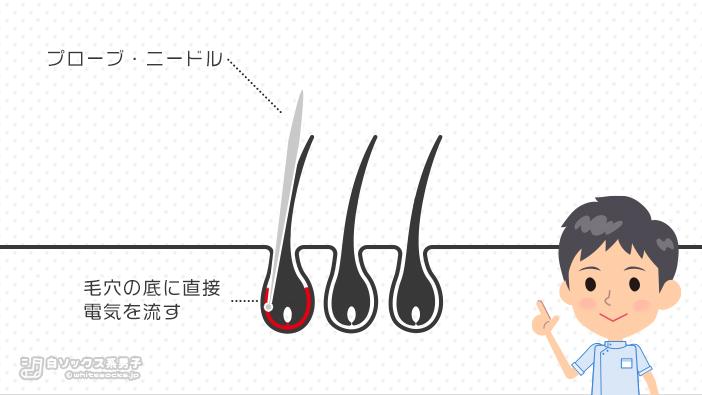 医療絶縁針脱毛・ニードル脱毛=直接的脱毛