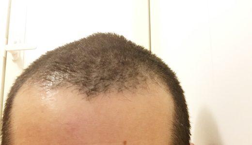 1cmくらい伸びると天パな髪質が残念、髪型に時間をかけないための丸刈りメンテナンスしました