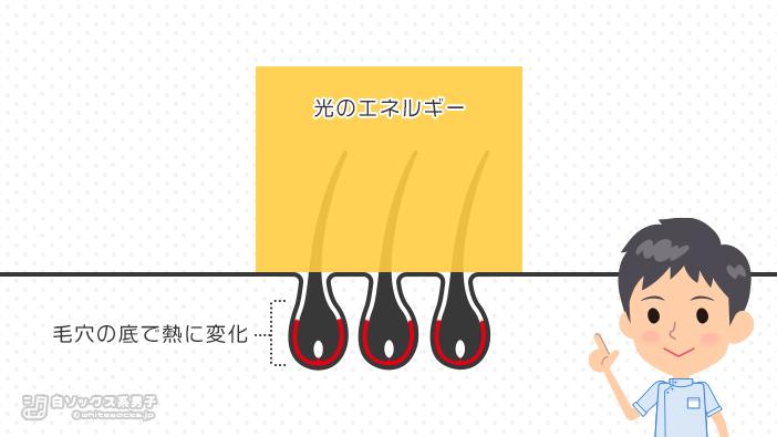 レーザーやIPL光による脱毛の図