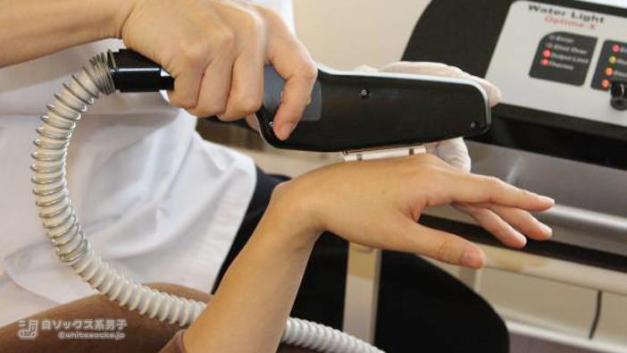『手の甲・指』の脱毛は無料!:効果を実感してから利用できる脱毛サロン